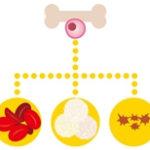 【チョイス@病気になったとき】急性骨髄性白血病の最新情報紹介!