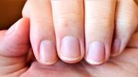 この差って何ですか?【爪を見るだけで体調が分かる】爪の縦線の原因とは?