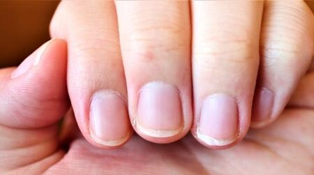 この差って何ですか? 爪 健康状態