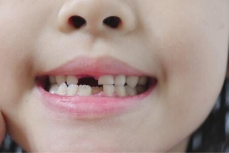 チョイス@病気になったとき 歯 治療法